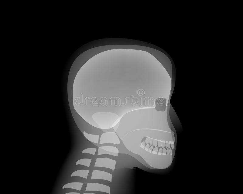 Side view Human head skull on x-ray film. Vector stock illustration