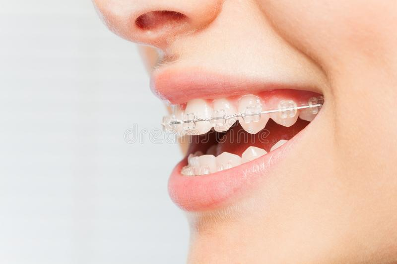 Woman`s smile with clear dental braces on teeth stock photography