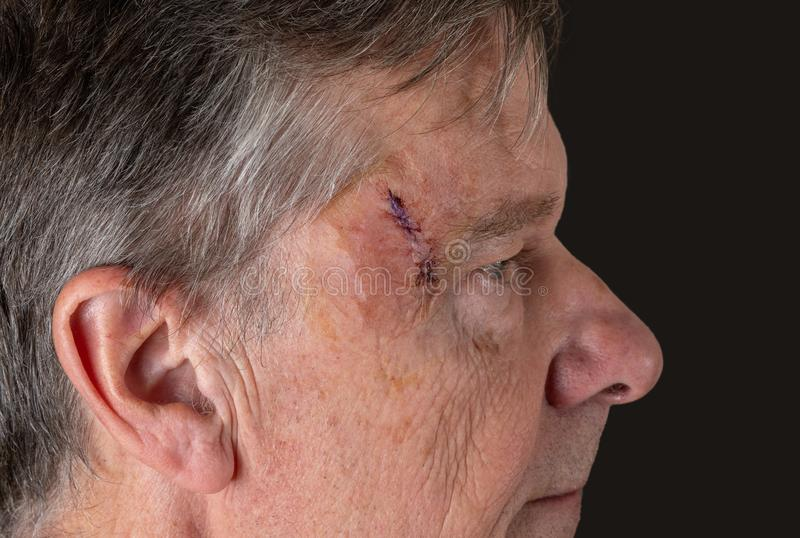 Side view of senior man after MOHS surgery to remove skin cancer stitches in wound. Senior adult male with stitches in the cut after surgery for removal of basal royalty free stock photo