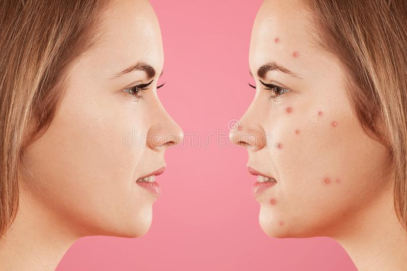 Sideways shot of two female`s faces: one with healthy pure skin and other with many pimples, has acne, constrast bewtween healthy stock photo