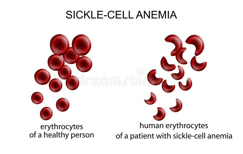 Sierp komórki anemia ilustracja wektor