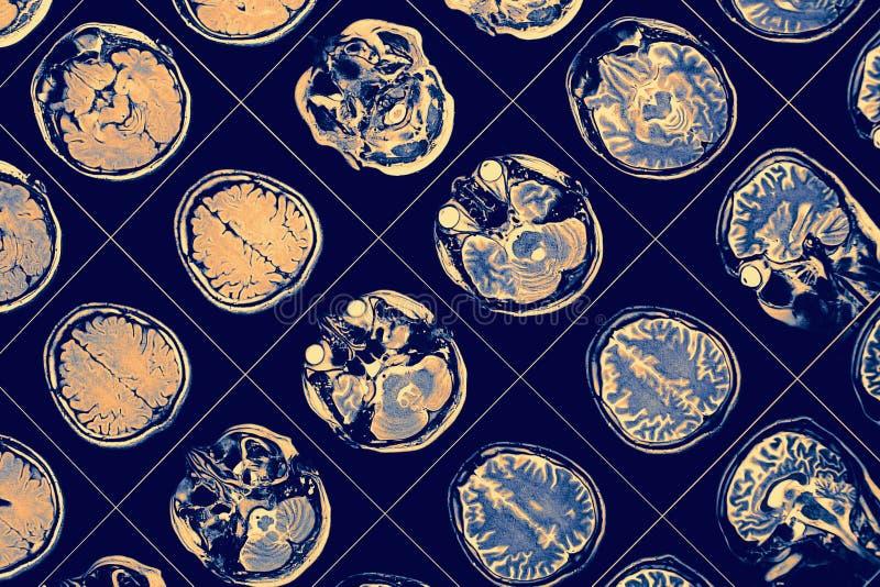 SIG. immagine di cervello umano fotografie stock