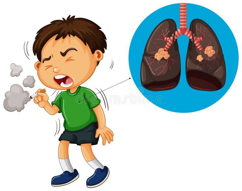 Sigaretta di fumo del ragazzo e diagramma non sano dei polmoni illustrazione vettoriale