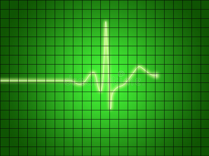 Signal d'EKG illustration de vecteur