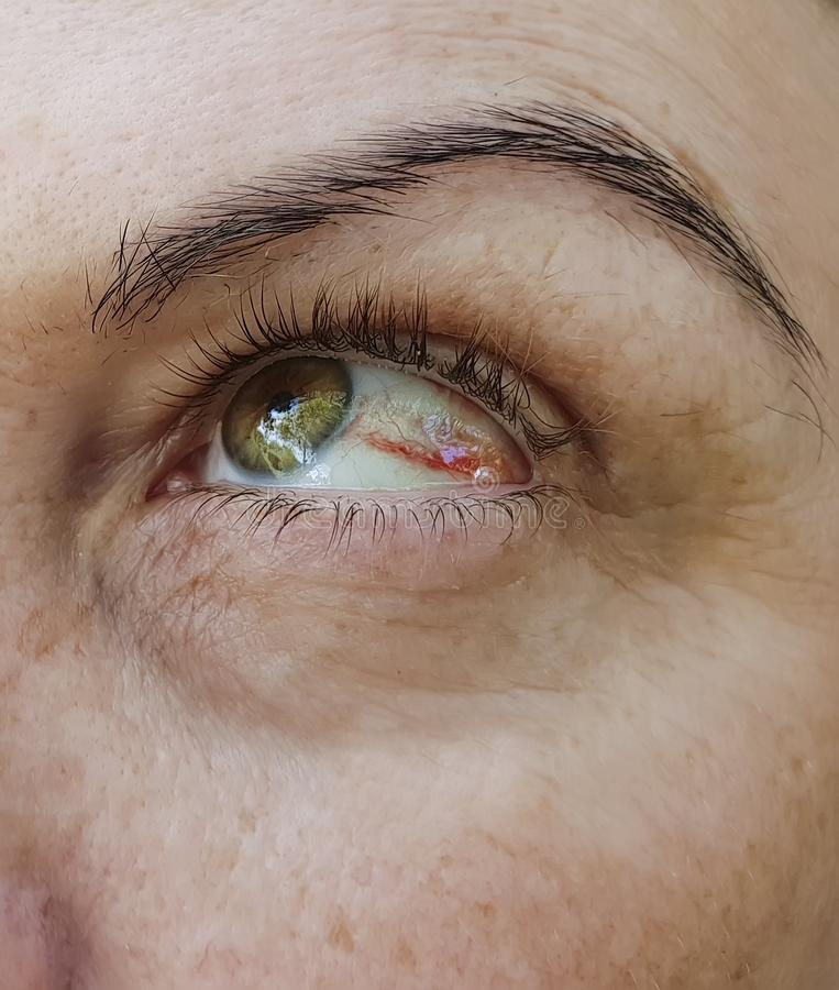 Sikt för inflammation för ögon för bindhinneinflammationkvinna röd arkivbild