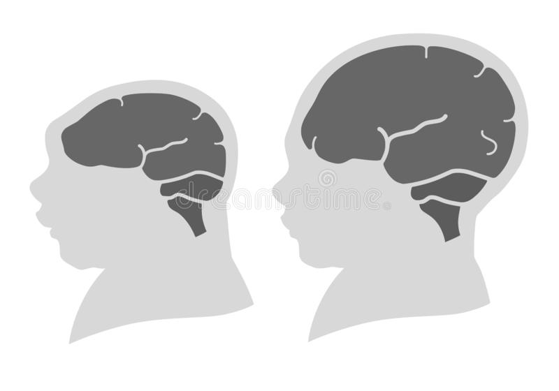 Silhouette image of the head and skull of a newborn child with a normal cranium and with microcephaly and severe microcephaly. Virus of Zika. Flat design royalty free illustration