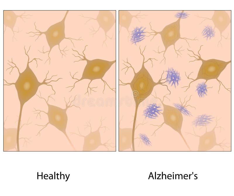 Silkespapper för Alzheimer sjukdomhjärna royaltyfri illustrationer