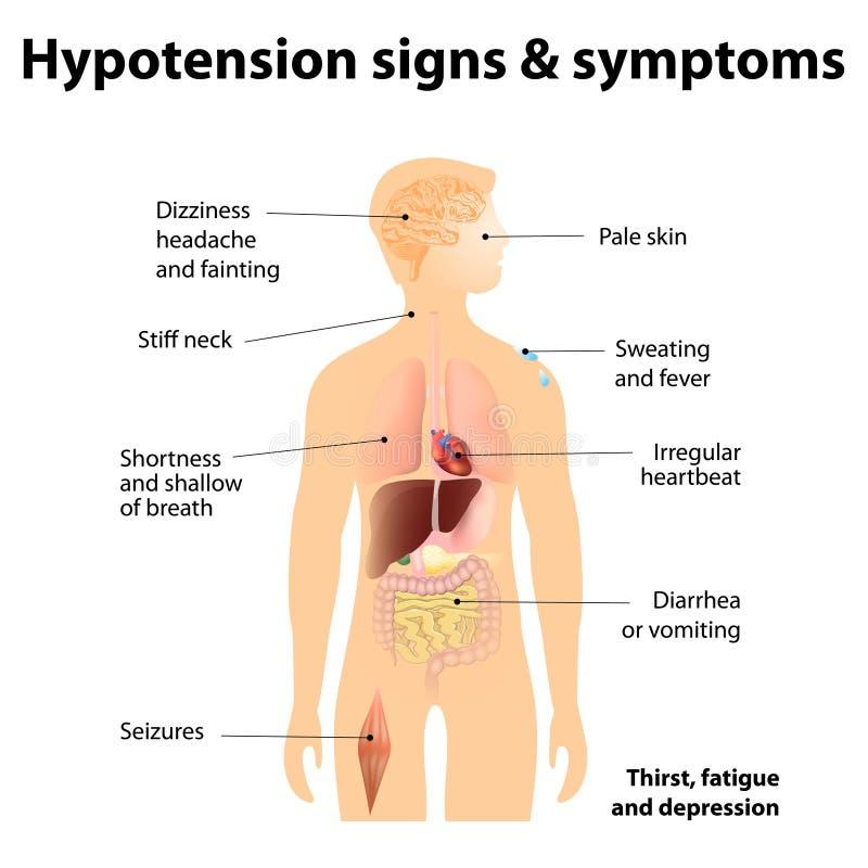 Sinais & sintomas da hipotensão ilustração royalty free