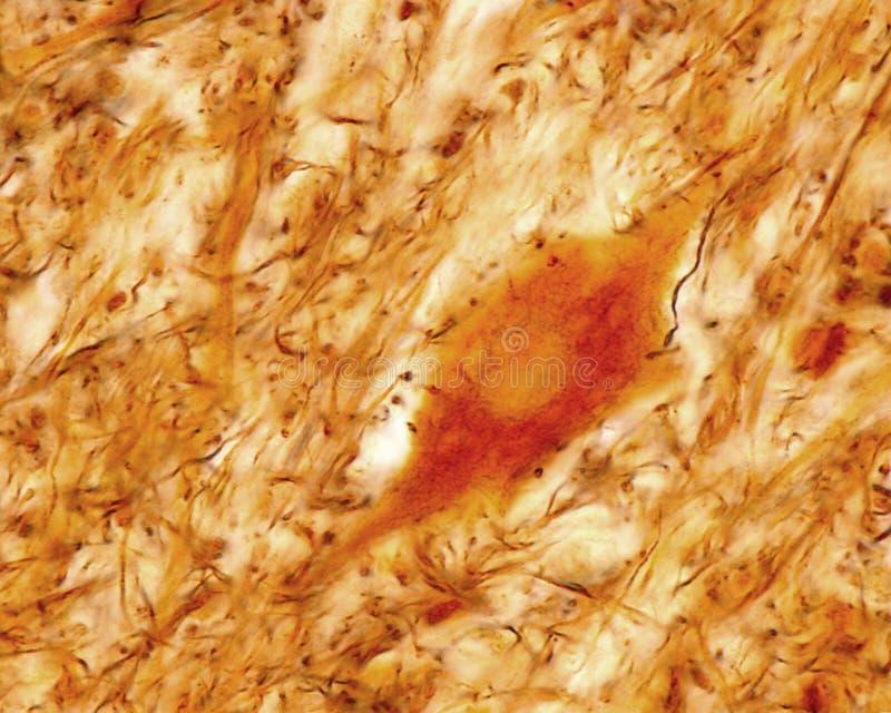 Sinapsis axosomáticas imagen de archivo libre de regalías
