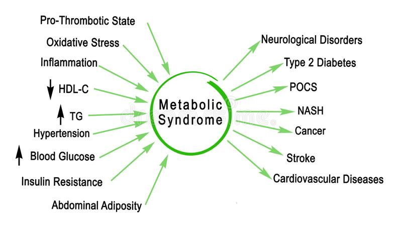 Sindrome metabolica royalty illustrazione gratis