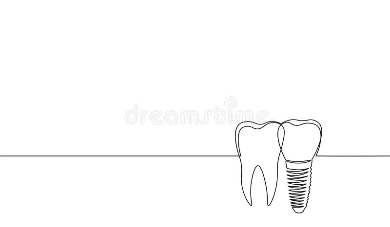 Single continuous line art anatomical human tooth silhouette implant. Healthy medicine recovery molar root cavity royalty free illustration