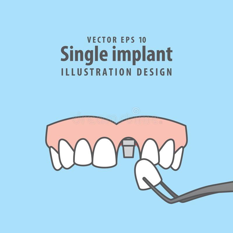 Single implant upper illustration vector on blue background. Den royalty free illustration