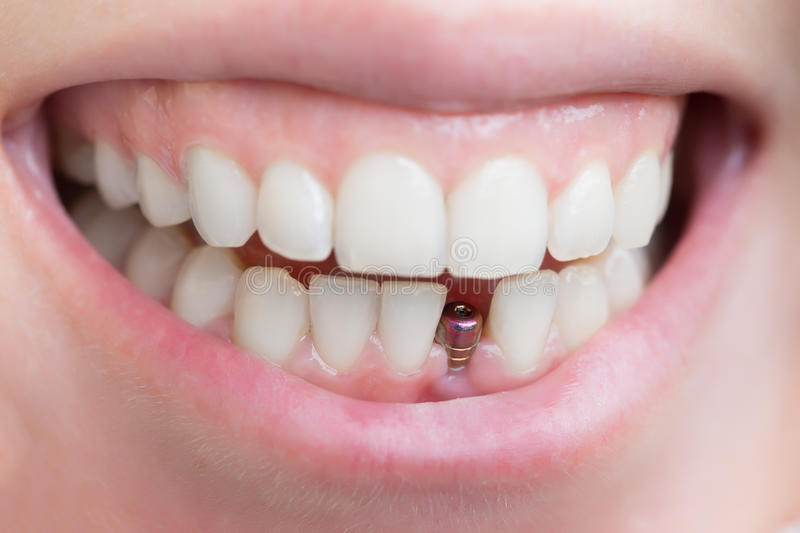 Single tooth implant stock image