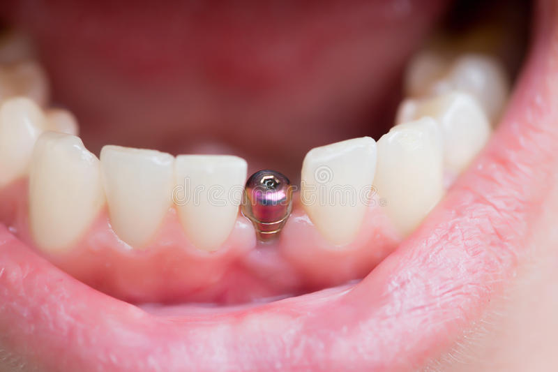 Singolo impianto del dente fotografia stock
