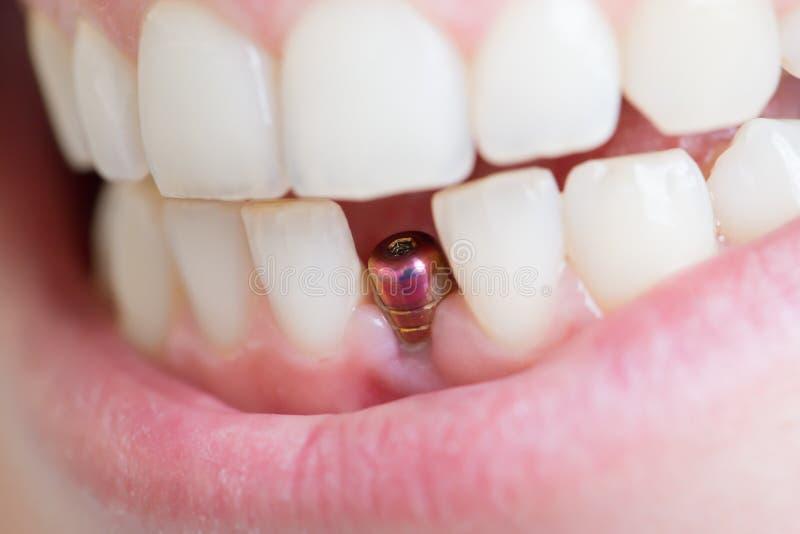 Singolo impianto del dente immagini stock
