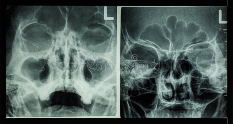 Sino frontal de la demostración del sino paranasal de la radiografía de la película, sino maxilar, sino etmoideo imagen de archivo libre de regalías