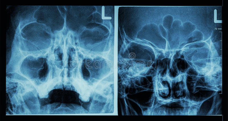 Sino frontal de la demostración del sino paranasal de la radiografía de la película, sino maxilar, sino etmoideo fotos de archivo libres de regalías