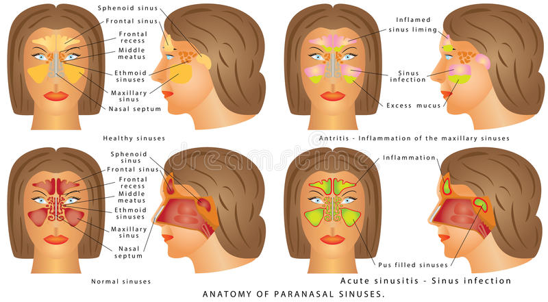 Sino nasal stock de ilustración