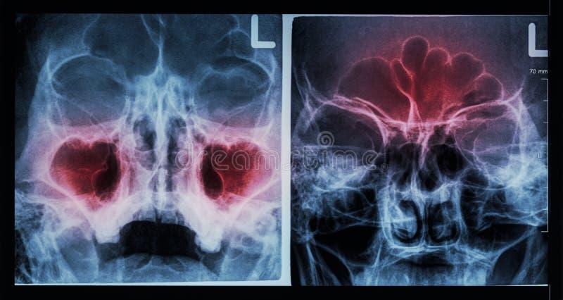 Sino paranasal de la radiografía de la película: muestre la sinusitis en el sino maxilar (dejó imagen), sino frontal (la imagen c imagen de archivo libre de regalías