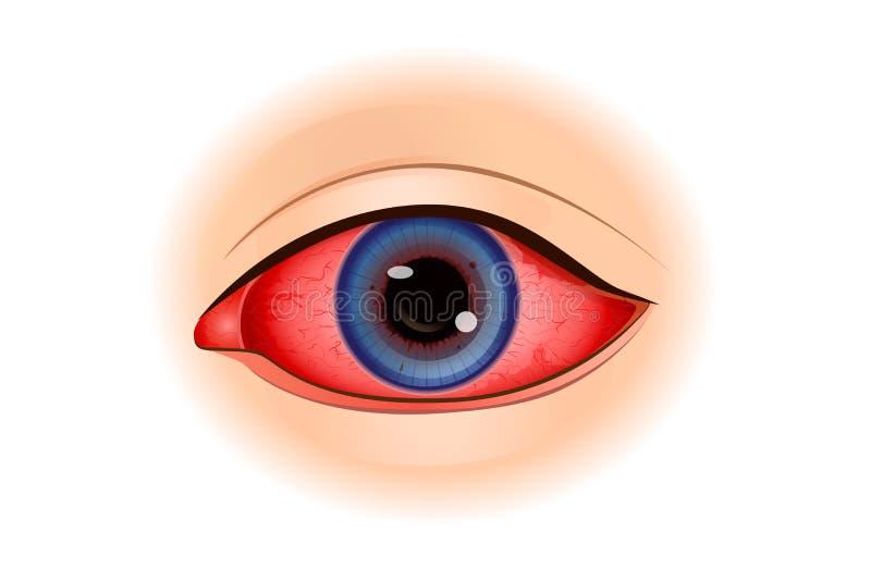 Sintomas de Uveitis ou inflamação do olho ilustração royalty free