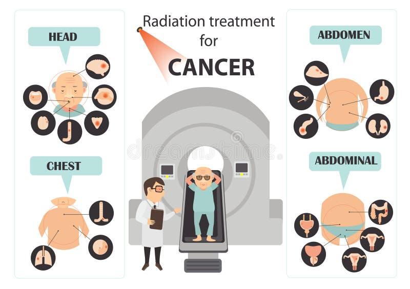 Sintomas do câncer do colo do útero ilustração royalty free
