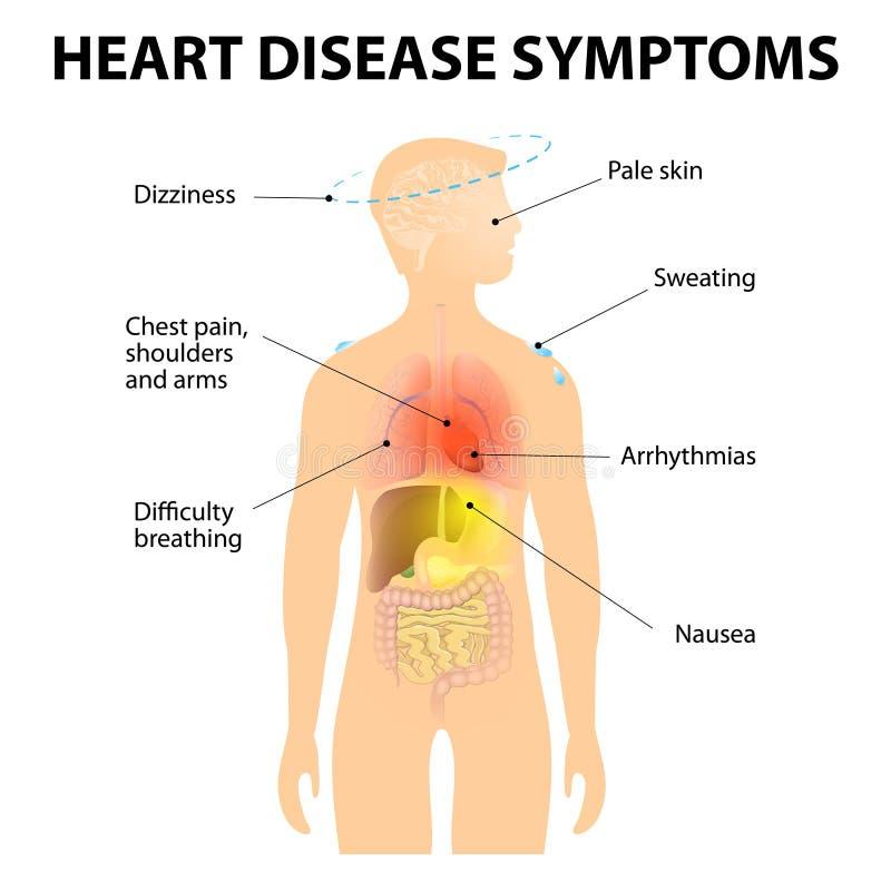 Sintomi della malattia cardiaca illustrazione vettoriale