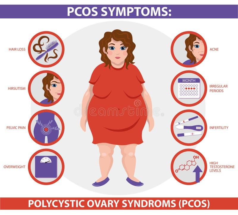 Sintomi di PCOS infographic Salute delle donne illustrazione vettoriale