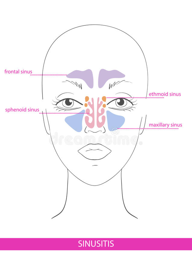 Sinus nasal inflammation illustration libre de droits