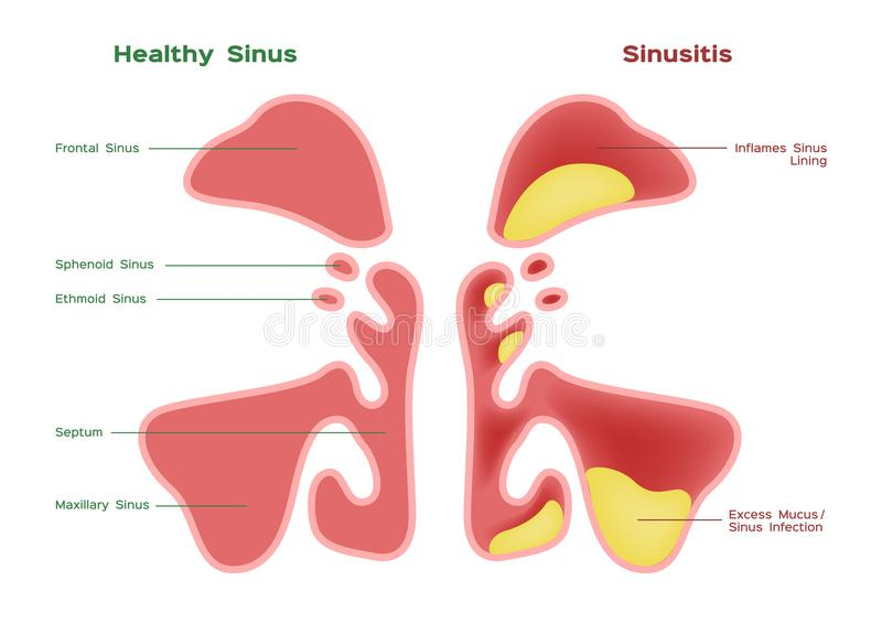 Sinus nasal Vecteur sain et d'inflammation de sinus illustration libre de droits