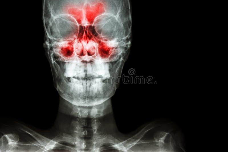 sinusitis imagen de archivo