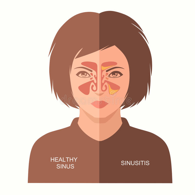 Sinusitis disease, royalty free illustration