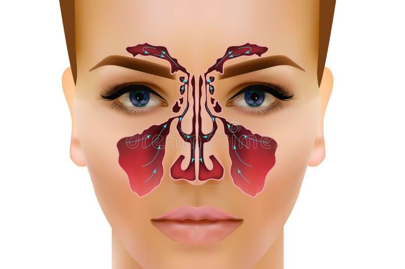 sinusitis Ejemplo nasal sano y de la inflamación del sino del vector ilustración del vector