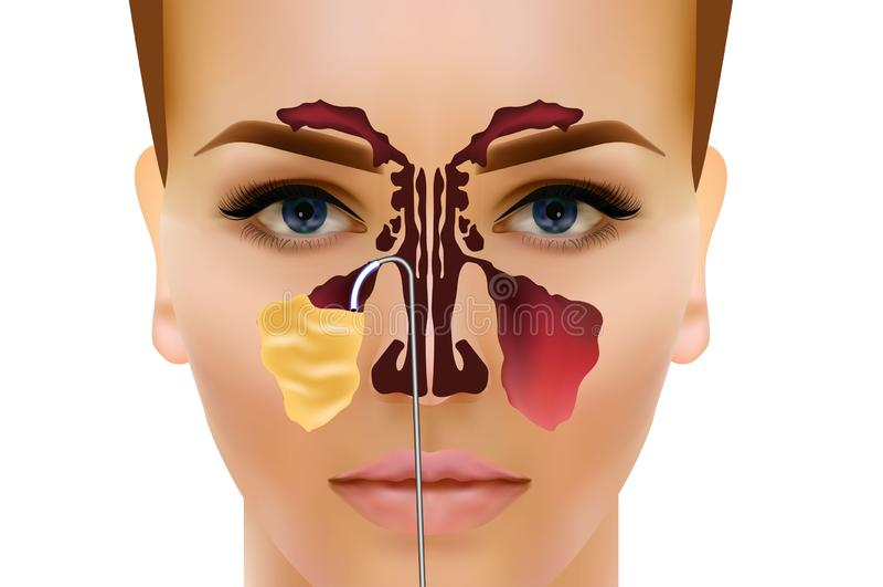 sinusitis Ejemplo nasal sano y de la inflamación del sino del vector stock de ilustración