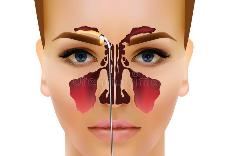 sinusitis Ejemplo nasal sano y de la inflamación del sino del vector libre illustration