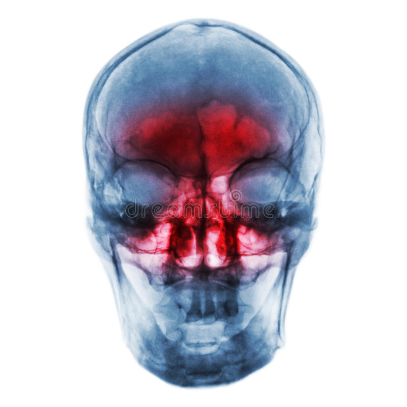 Free Sinusitis . Film X-ray Of Human Skull With Inflamed At Sinus Stock Images - 96003494