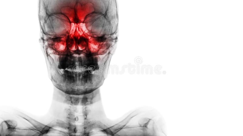 Sinusitis at frontal , ethmoid , maxillary sinus . Film x-ray of skull and blank area at right side stock photo