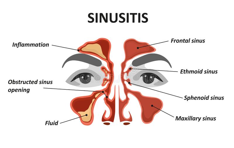 Sinusitis. Healthy and inflammation nasal sinus royalty free illustration