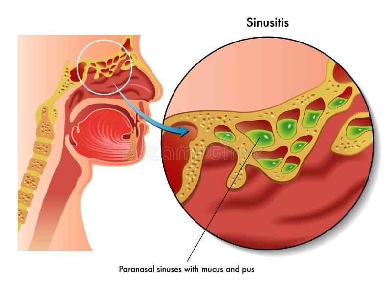 Sinusitis vector illustration
