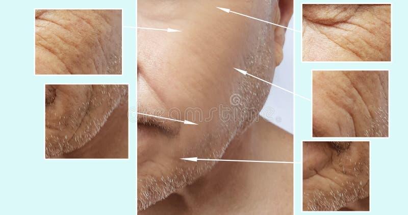 Sirva al cosmetólogo mayor de la corrección de la diferencia del retiro del efecto de las arrugas de la cara antes y después de p foto de archivo