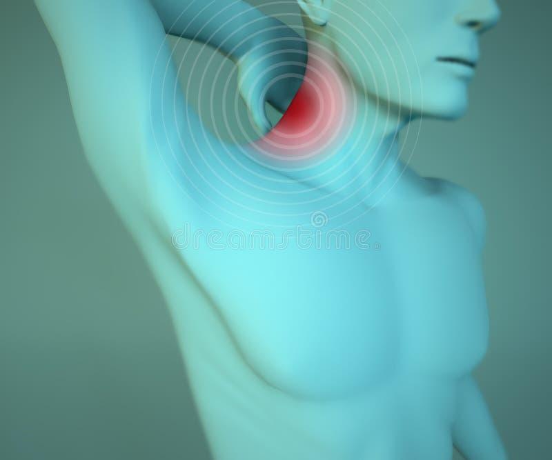 Sirva el dolor, el músculo y la cabeza de cuello de la anatomía stock de ilustración