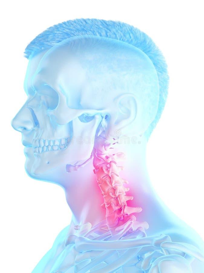a sirve el cuello doloroso libre illustration