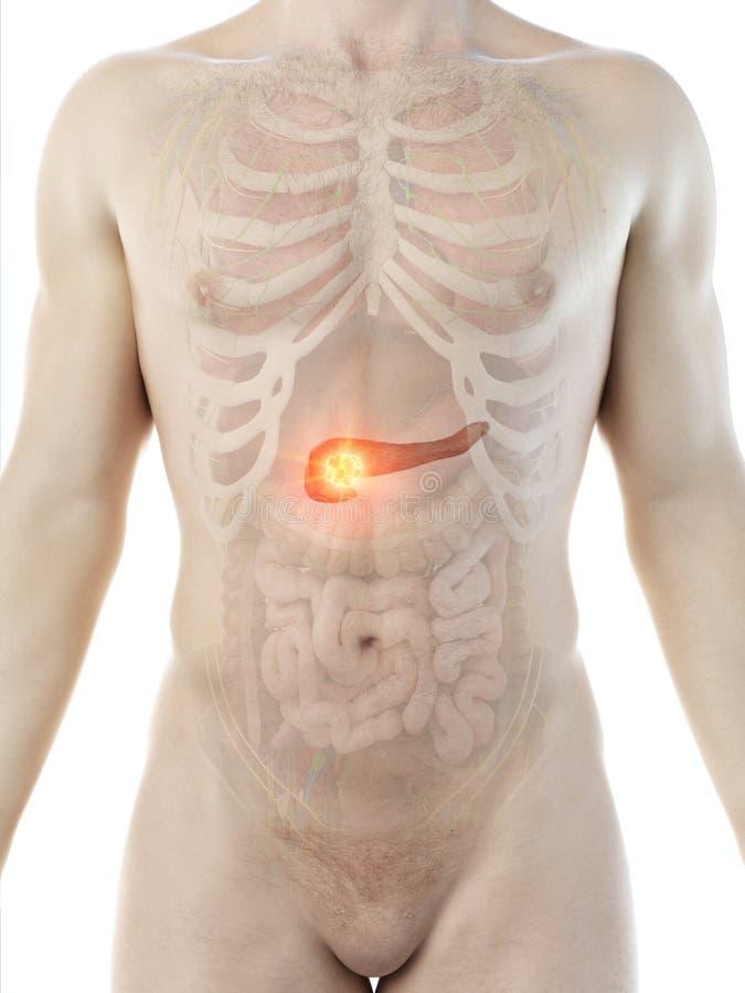 Sirve el tumor del p?ncreas stock de ilustración