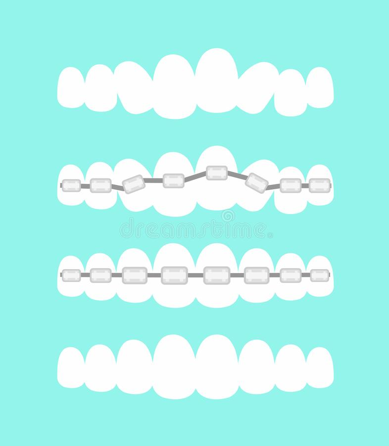 Sistema de dientes, tratamiento dental con los apoyos de los dientes, proceso del ejemplo del vector de la ortodoncia de dientes  ilustración del vector