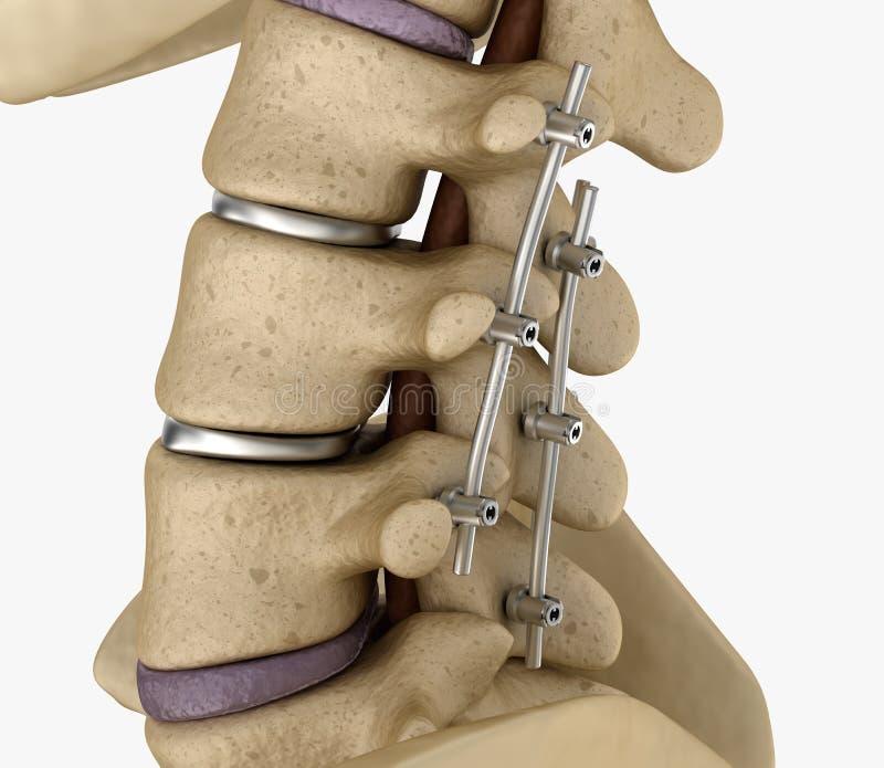 Sistema de fijación de la espina - soporte de titanio Médicamente preciso ilustración del vector