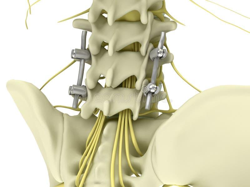 Sistema de la fijación del tornillo del pedicle del metal en la espina dorsal lumbar aislada en el ejemplo blanco del fondo 3d ilustración del vector