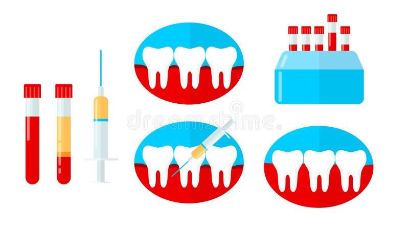 Sistema de PRP, plasma rica de la plaqueta en odontología Diente, goma de la sangría, jeringuilla, centrifugadora Ejemplo del vec stock de ilustración
