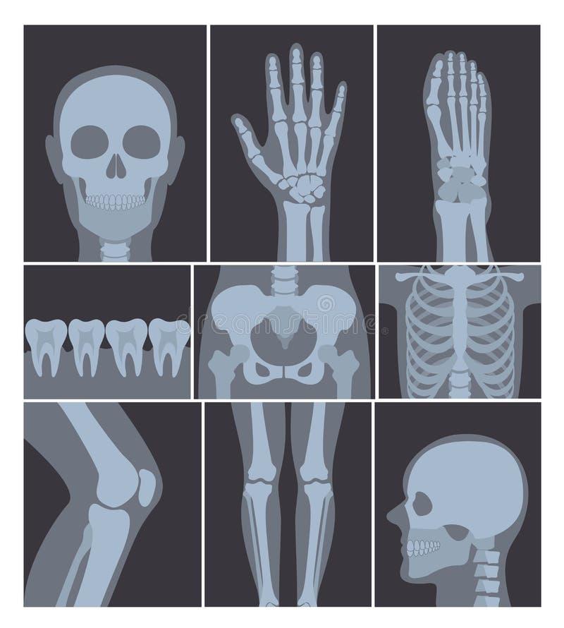 Sistema del ejemplo del vector de tiros de las radiografías Mano, cabeza, rodilla, y otras partes del cuerpo humano en X tiros de ilustración del vector