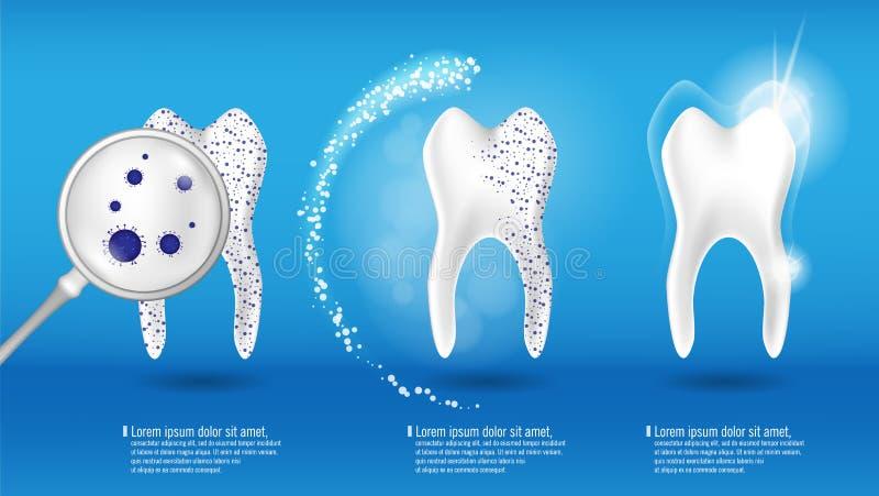 Sistema dental del vector del concepto de la salud diente limpio 3d y sucio brillante realista en fondo, el claro y blanquear azu ilustración del vector