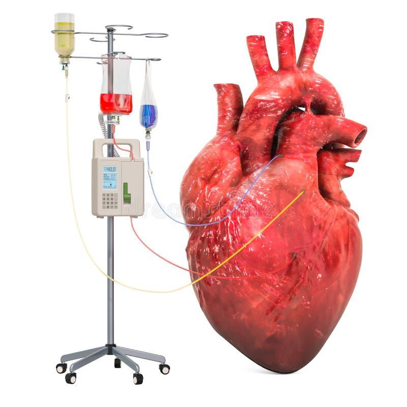 Sistema endovenoso di terapia con cuore umano Trattamento del concetto della malattia cardiaca, rappresentazione 3D illustrazione vettoriale
