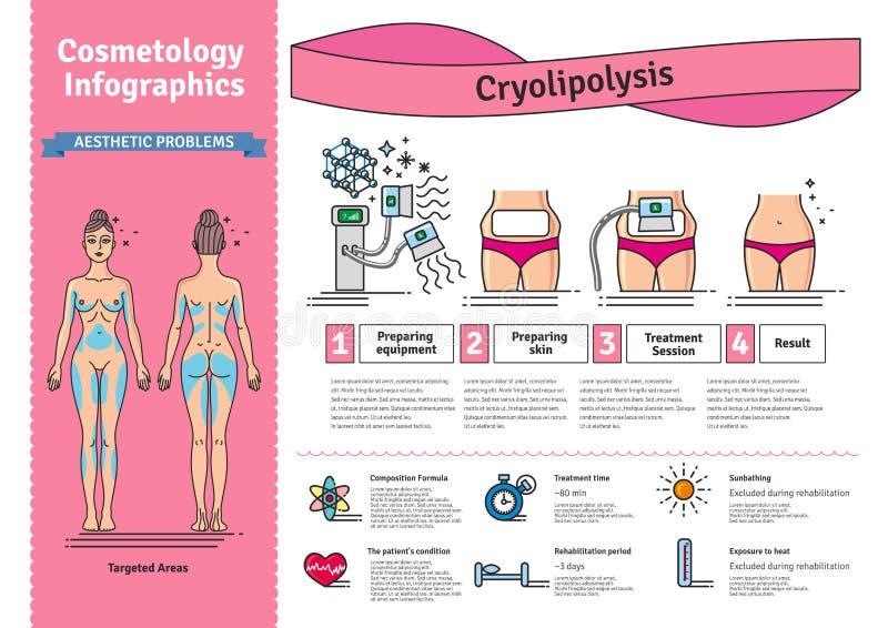 Sistema ilustrado vector con el tratamiento de Cryolipolysis de la cosmetología stock de ilustración